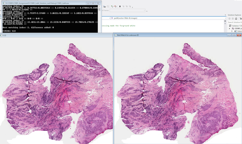 Cancer Tumor Processing with OpenCV   Moo-Ack! Productions
